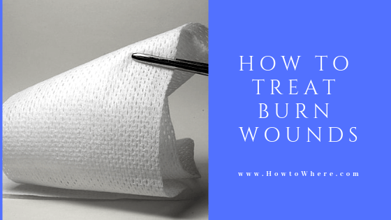 burn injury treatment